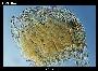 Parasterope micrommata Kornicker
