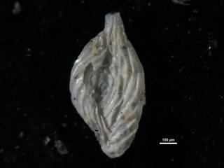 To NMNH Paleobiology Collection (Spiroloculina alticostata cc41497)