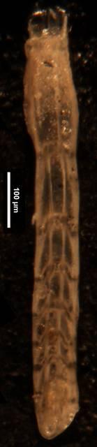 To NMNH Paleobiology Collection (Amphimorphina gracilis cc56685 L)