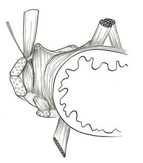 To NMNH Extant Collection (Rondeletia loricata P16464 illustration)