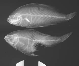 To NMNH Extant Collection (Citharichthys USNM 101896 radiograph)