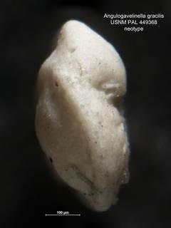 To NMNH Paleobiology Collection (Angulogavelinella gracilis 449368 neo 2)