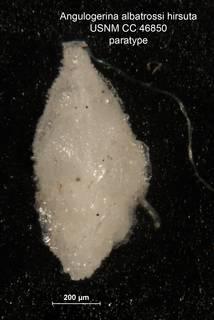 To NMNH Paleobiology Collection (Angulogerina albatrossi var hirsuta para cc 46850)