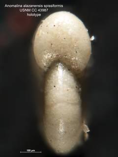 To NMNH Paleobiology Collection (Anomalina alazanensis spissiformis CC 43987 holo 2)