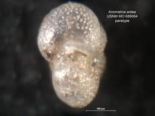 To NMNH Paleobiology Collection (Anomalina aotea MO 689064 para 2)