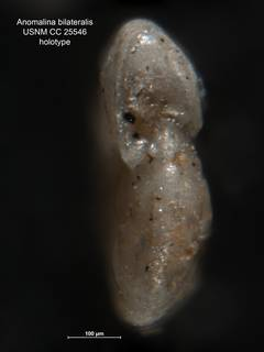 To NMNH Paleobiology Collection (Anomalina bilateralis CC 25546 holo 3)