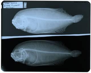 To NMNH Extant Collection (Bothus tchangi RAD103770-001)