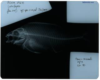 To NMNH Extant Collection (Latridopsis ciliaris RAD107397-001)