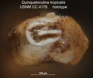 To NMNH Paleobiology Collection (Quinqueloculina tropicalis USNM CC 4178 holotype ap)