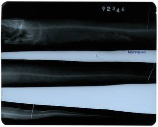 To NMNH Extant Collection (Silvesterina parvibranchialis RAD107760-001)