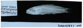 To NMNH Extant Collection (Cheilodipterus nigrotaeniatus RAD105447-001)
