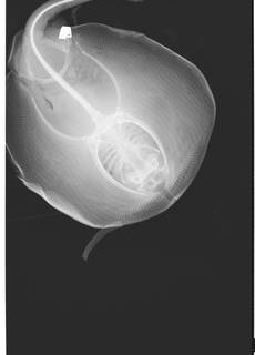 To NMNH Extant Collection (Urolophus USNM 205519 radiograph dorsal view anterior)