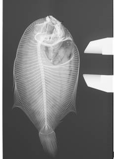 To NMNH Extant Collection (Engyprosopon hawaiiensis USNM 50657 Type radiograph)