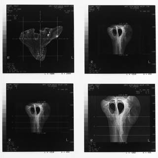 To NMNH Extant Collection (USNM 395632 Mesoplodon sp Radiograph 001)