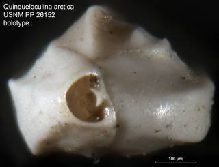 To NMNH Paleobiology Collection (Quinqueloculina arctica USNM PP 26152 holotype ap)