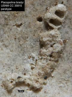 To NMNH Paleobiology Collection (Placopsilina bradyi USNM CC 35815 paratype)
