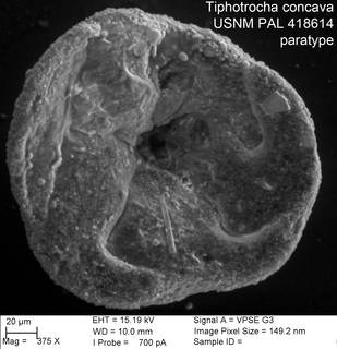 To NMNH Paleobiology Collection (Tiphotrocha concava USNM PAL 418614 paratype)