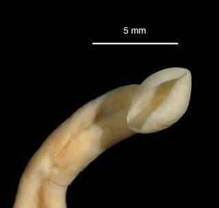 "To NMNH Extant Collection (Galatheabdella bruuni USNM 121379 specimen ""a"" anterior sucker)"