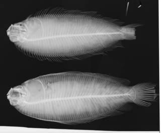 To NMNH Extant Collection (Limanda beani USNM 26102 lectotype radiograph)