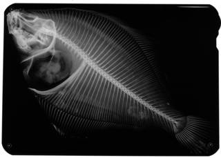 To NMNH Extant Collection (Lepidopsetta mochigarei USNM 68245 holotype radiograph)