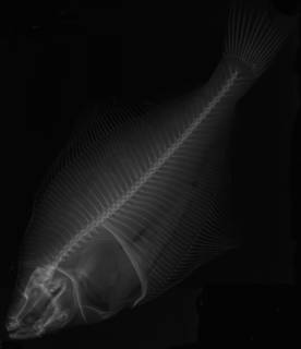 To NMNH Extant Collection (Limanda korigarei USNM 75669 holotype radiograph)