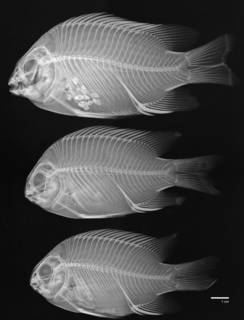 To NMNH Extant Collection (Abudefduf concolor USNM 321194 radiograph lateral view 3 of 5)