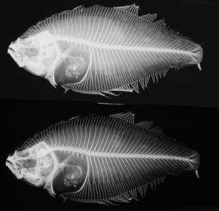 To NMNH Extant Collection (Citharichthys stigmaeus USNM 31099 type radiograph lateral view)
