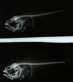 To NMNH Extant Collection (Hemirhombus paetulus USNM 37331 paratype 1 of 2 radiograph lateral view)