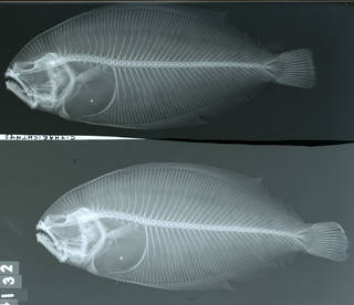 To NMNH Extant Collection (Citharichthys panamensis USNM 44132 syntype radiograph lateral view)