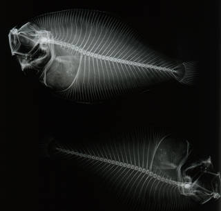 To NMNH Extant Collection (Syacium gunteri USNM 92800 type radiograph lateral view)