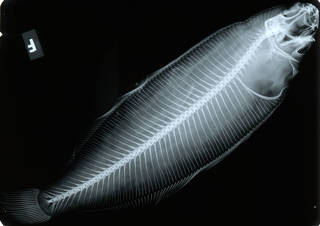 To NMNH Extant Collection (Tanakius kitaharae USNM 151859 nontype radiograph lateral view)