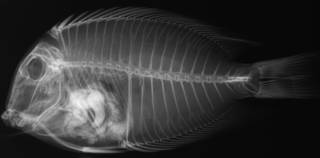 To NMNH Extant Collection (Ctenochaetus binotatus USNM 136125 ype radiograph lateral view)