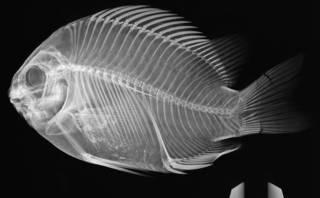 To NMNH Extant Collection (Abudefduf declivifrons USNM 5694 radiograph)