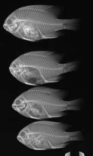 To NMNH Extant Collection (Stegastes baldwini USNM 114945 paratype radiograph 4 of 37)