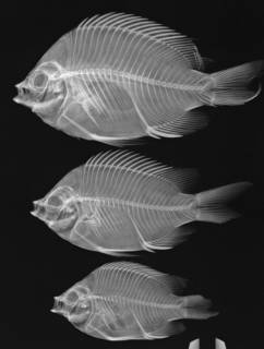 To NMNH Extant Collection (Abudefduf troscheli USNM 181297 radiograph 3 of 7)