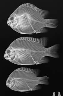 To NMNH Extant Collection (Abudefduf declivifrons USNM 181315 radiograph 3 of 5)