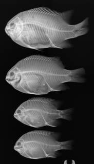 To NMNH Extant Collection (Stegastes leucorus USNM 298815 radiograph 4 of 29)