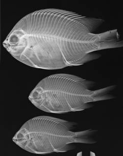 To NMNH Extant Collection (Abudefduf troscheli USNM 364531 radiograph 3 of 6)