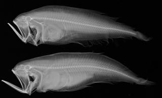 To NMNH Extant Collection (Chascanopsetta USNM 159252 radiograph)
