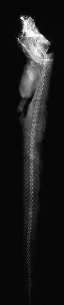 To NMNH Extant Collection (Lycodapus grossidens USNM 75824 radiograph lateral view)