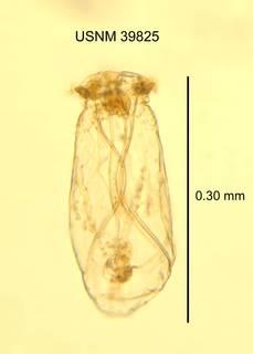 To NMNH Extant Collection (IZ WRM 39825 Asplanchna priodonta length 30 photo)