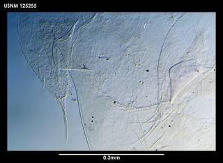 To NMNH Extant Collection (Arcoscalpellum imbricotectum, photo 1)