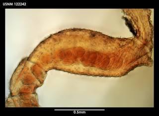 To NMNH Extant Collection (Achelia communis 122242)