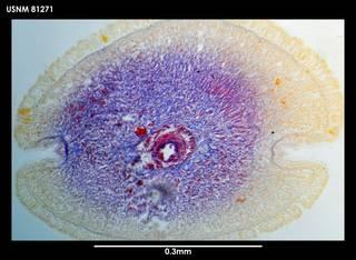 To NMNH Extant Collection (Paramicrurinella falklandica 81271)